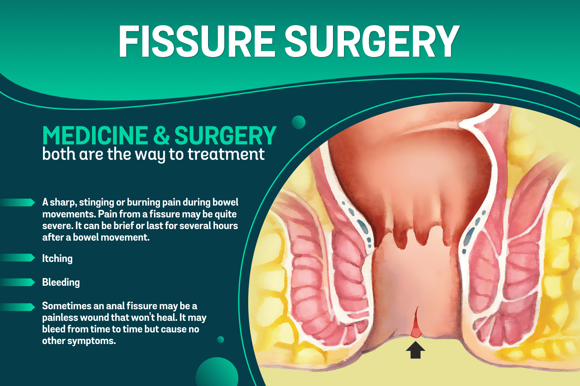 Best Anal Fissure Doctor in Indore