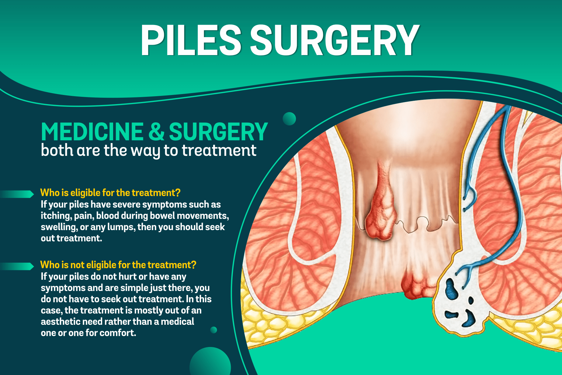 piles female surgery doctor in indore