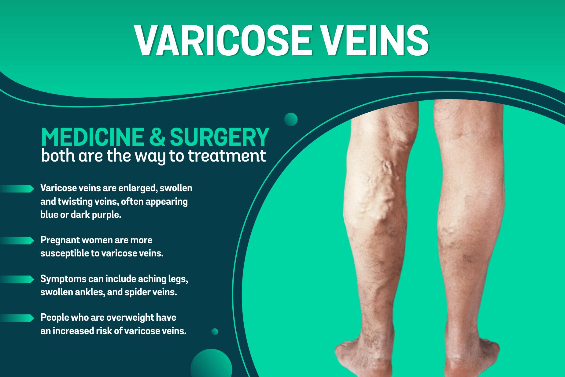 Varicose Veins Specialist in Indore
